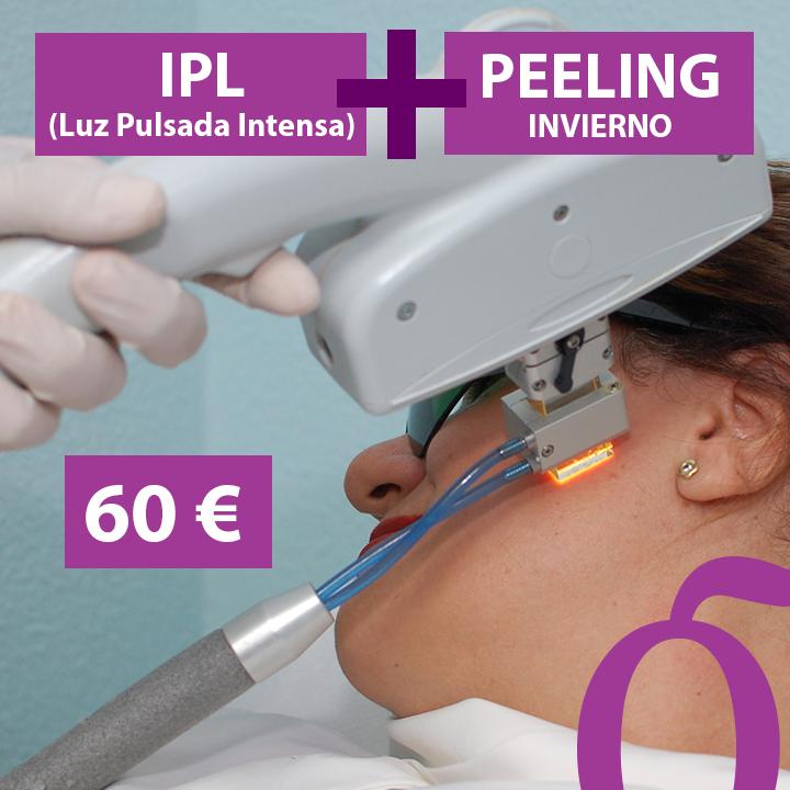 fk-promo-ene-2020-ipl-peeling